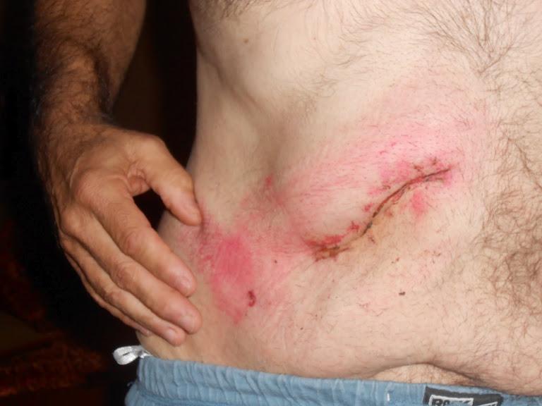 27 septembre 2012 - Alain et sa cicatrice 001